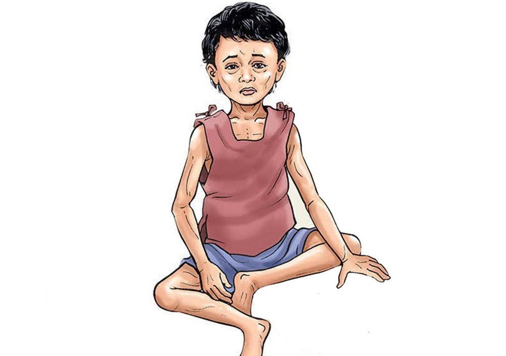 अफगानी बालबालिकामा कुपोषणका कारण ज्यान जाने जोखिम